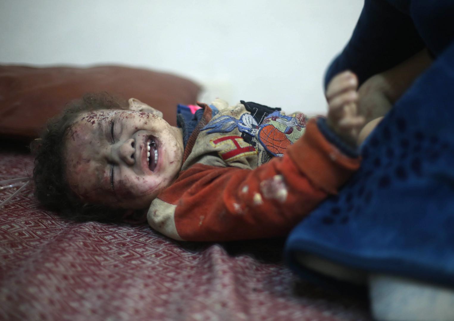 Un enfant attend de recevoir des soins blessé après une attaque du régime à Arbin