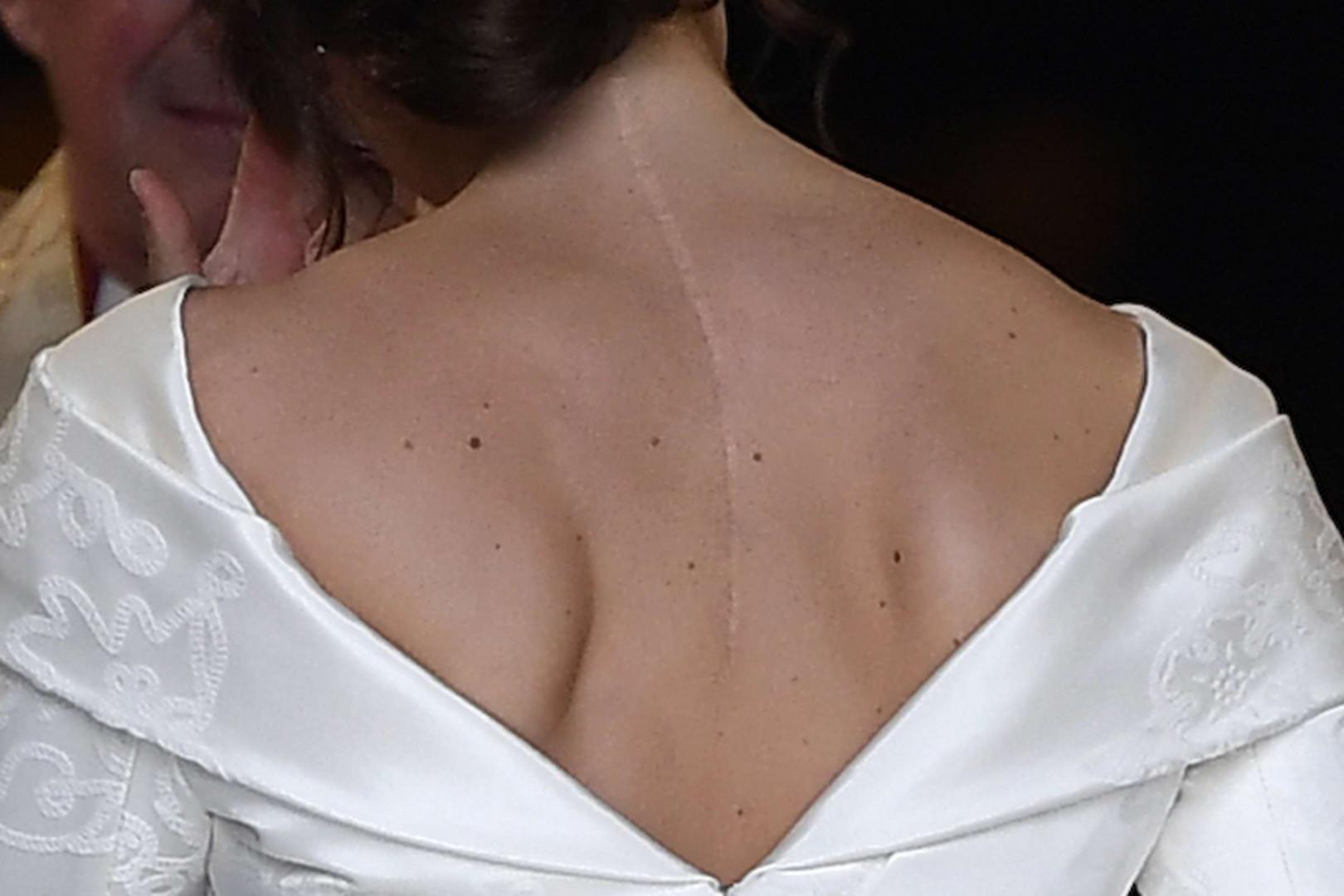 La cicatrice de la princesse Eugenie