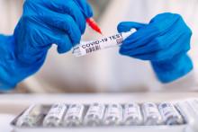 Tests antigéniques : sont-ils fiables ?