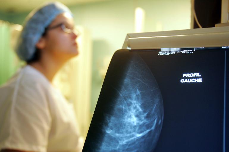 Image faite lors d'une macrobiopsie par mammotome sur une patiente ayant présenté des lésions lors d'une mammographie le 08 mars 2006 à l'Institut Curie à Paris.
