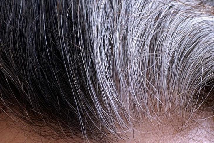 Le stress favorise les cheveux blancs
