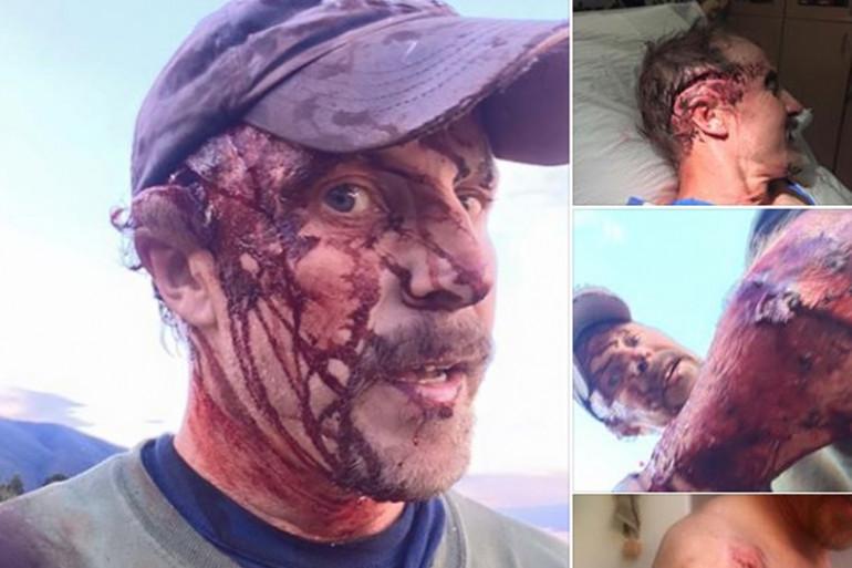 Todd Orr a subi une double attaque d'ours dans le Montana