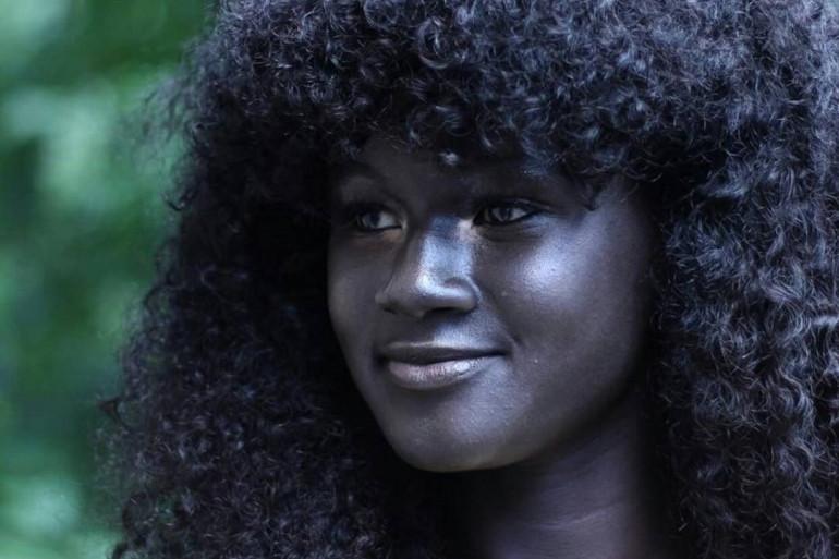Khoudia Diop, harcelée à cause de sa peau dans le passé, est aujourd'hui une reine d'Instagram.