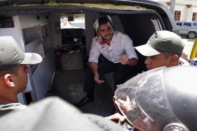 Le député de l'opposition vénézuélienne Armando Armas, le 5 juillet 2017