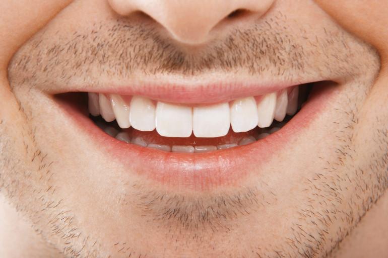 Les conseils de Michel Cymes pour remplacer une dent manquante