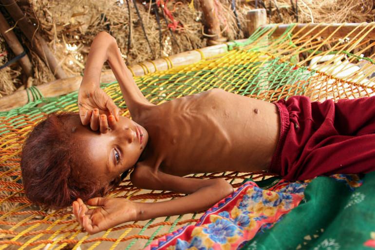 Un enfant victime de malnutrition au Yemen (illustration)