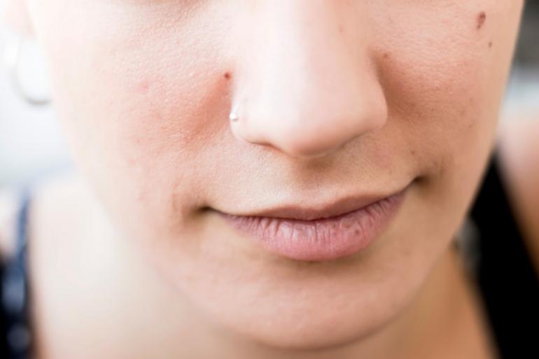 La xérostomie correspond à une sécheresse dans la bouche