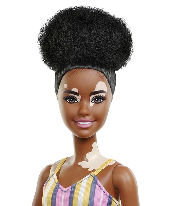 Barbie atteinte de vitiligo, disponible en points de ventes