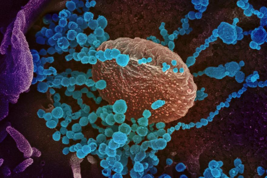 Le SARS-CoV-2 observé au microscope électronique (en bleu sur cette image)