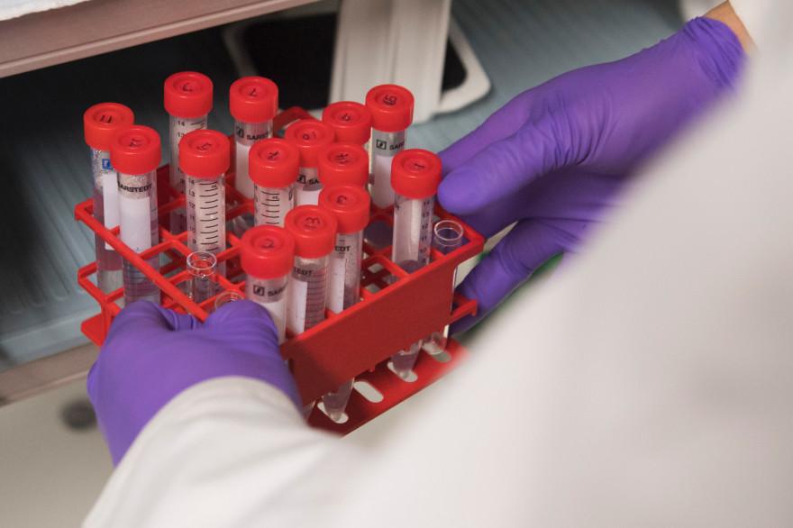Les cellules des patients doivent être modifiées en laboratoire