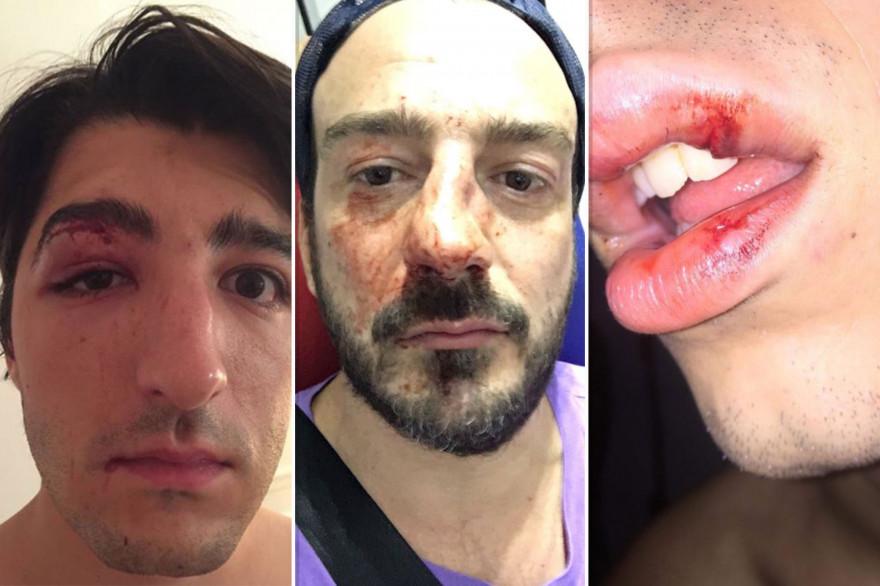 Les témoignages d'agressions homophobes se multiplient sur les réseaux sociaux