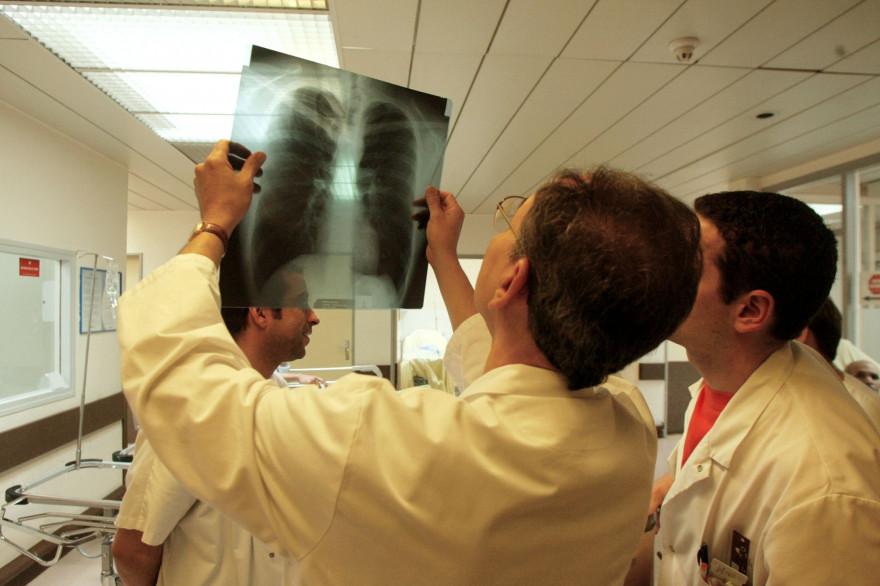 Des médecins analysant une radio des poumons (illustration)